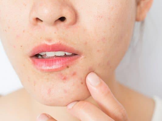 acne prone mouth