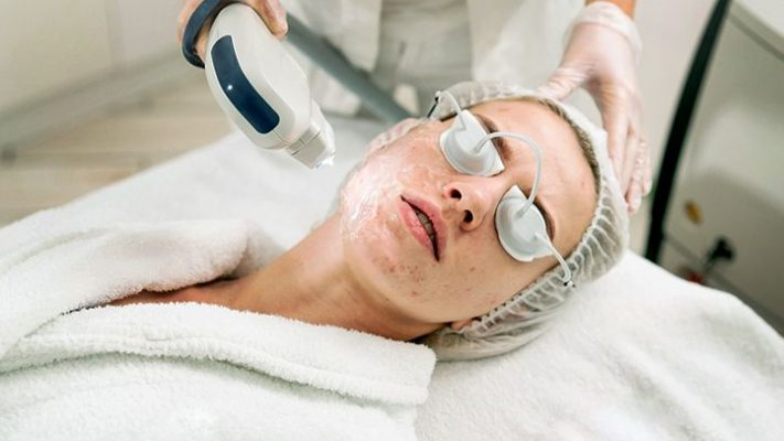 acne scar removal vs cosmetic surgery